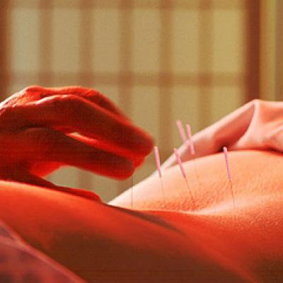 Βελονισμός και Πόνος στην Οσφυϊκή Μοίρα