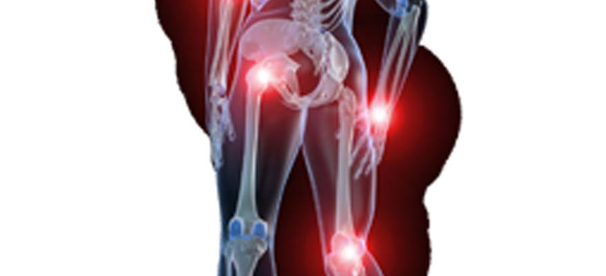 Αρθρίτιδες και Θεραπεία με Laser για τους πόνους