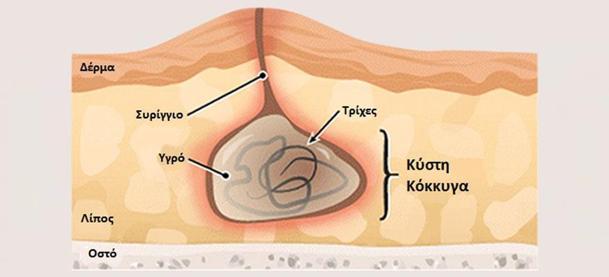 Κύστη κόκκυγα: Ανώδυνη, μη Επεμβατική Θεραπεία με Laser